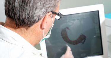 Hoy en día las nuevas tecnologías y la realidad virtual se han establecido en muchos ámbitos profesionales y domésticos, y la medicina y la odontología son también parte de estos. Dentro del ámbito de la medicina o la investigación es habitual leer en el periódico o ver en televisión noticias referentes a prótesis realizadas mediante sistemas de planificación virtual o impresoras 3D, así como de cirugía guiada por ordenador. En el ámbito de la Cirugía Oral y Maxilofacial, la planificación virtual y las impresiones de modelos 3D están plenamente establecidas. La impresión de modelos tridimensionales inicialmente mediante la estereolitografía y más recientemente mediante impresiones 3D, han servido de base para la planificación de cirugías del esqueleto maxilofacial y cráneofacial, así como para el modelado y fabricación de prótesis individualizadas para cada paciente. Hoy en día, la tecnología ha evolucionado hacia la realidad virtual y la planificación y fabricación de prótesis específicas para cada paciente. Este proceso se realiza gracias a un software informático específico, sin necesidad de realizar impresiones 3D o modelos estereolitográficos. La realidad virtual permite transformar imágenes radiológicas médicas conocidas como DICOM, en archivos STL que pueden manipularse en diferentes softwares informáticos, pudiendo trabajar de forma virtual y realizando todos los procesos de planificación en el ordenador. Esta nueva tecnología se aplica en todas las áreas de la Cirugía Oral y Maxilofacial, y también en la Odontología Desde la implantología oral para la fabricación de guías quirúrgicas y prótesis dentales a medida, a la fabricación de prótesis articulares de articulación temporo-mandibular, en cirugía ortognática para la corrección de las anomalías dentofaciales y en áreas más complejas como en la cirugía oncológica y cirugía reconstructiva maxilofacial. Una aplicación en el día a día de nuestro ámbito de trabajo es la Cirugía Ortognática. Se trata de una cir